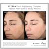 SkinMedica LYTERA Skin Brightening Complex: Image 3