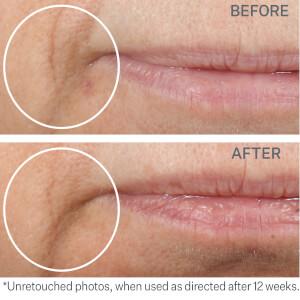 StriVectin Multi-Action Restorative Cream 50ml: Image 3