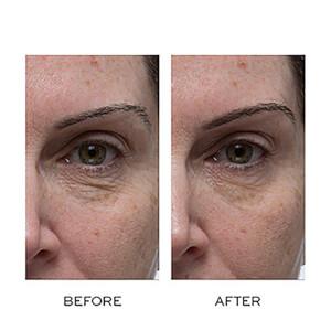 Elemis Peptide Eye Recovery Cream 15ml: Image 3
