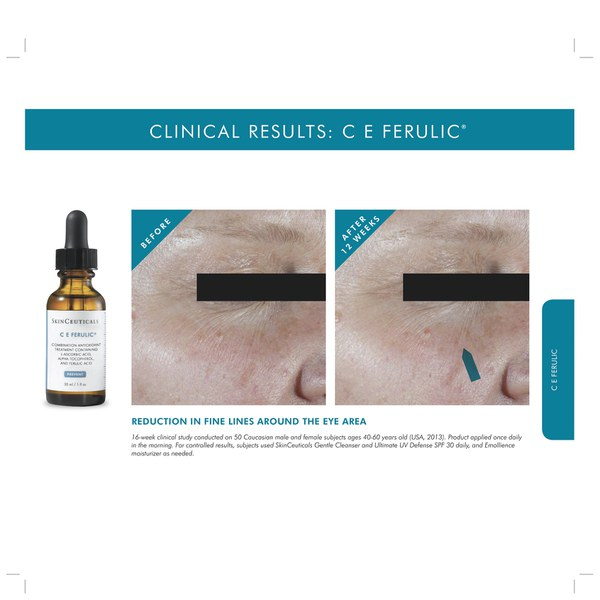 C E Ferulic features a synergistic antioxidant combination of 15% pure vitamin C (L-ascorbic acid), 1% vitamin E (alpha tocopherol), and % ferulic acid to enhance protection against environmental damage caused by free radicals that can contribute to atmospheric planetbmxngt.ml: $