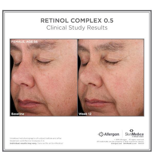 Skinmedica Retinol Complex 0 5 1oz Skinstore