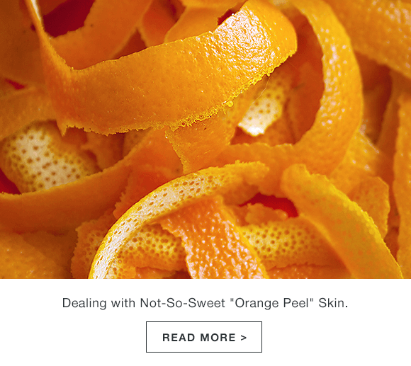 Orange Peel Skin: How to Treat the Not-So-Sweet Condition